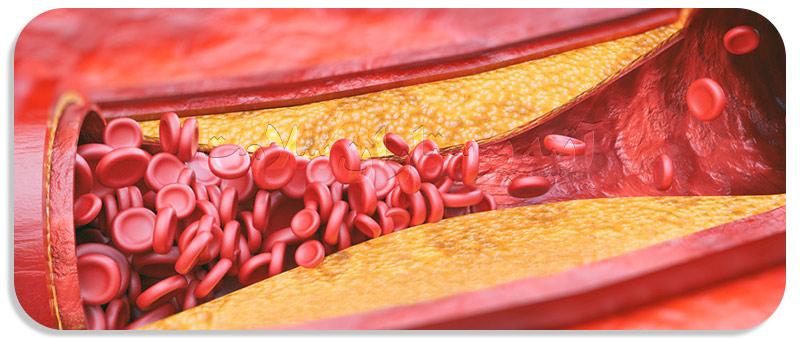 انواع بیماری قلبی در سالمندان