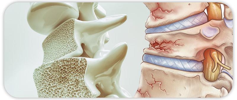 جلوگیری از پوکی استخوان در سالمندان
