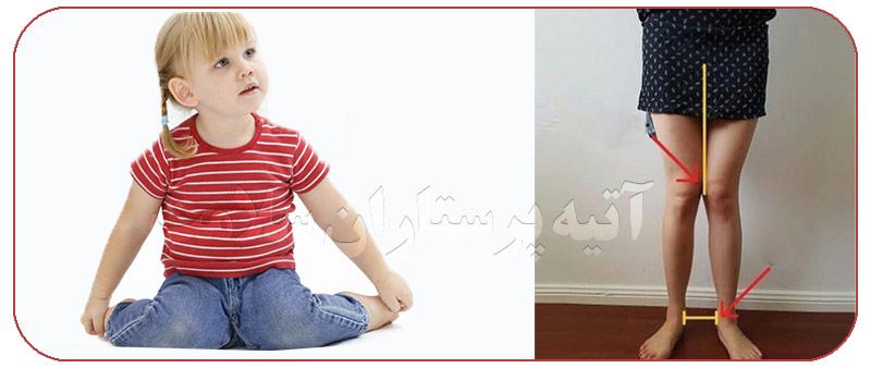 نشستن به صورت w در کودک
