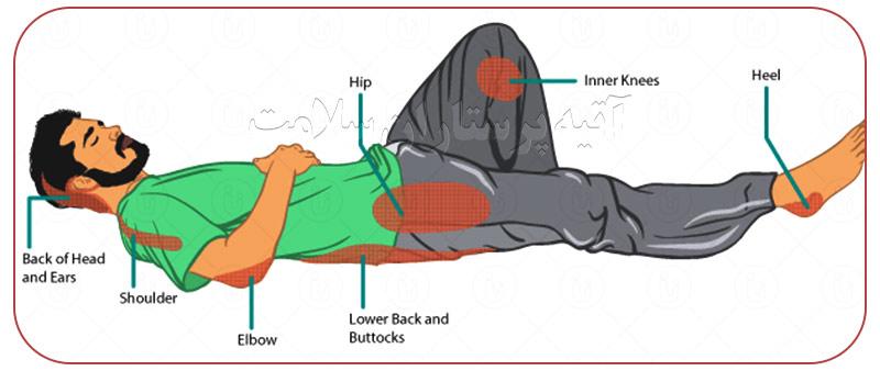 نقاط در معرض زخم بستر برای دانستن پرستار زخم بستر