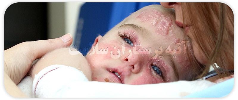 بیماری پروانه ای در کودکان و نوزادان