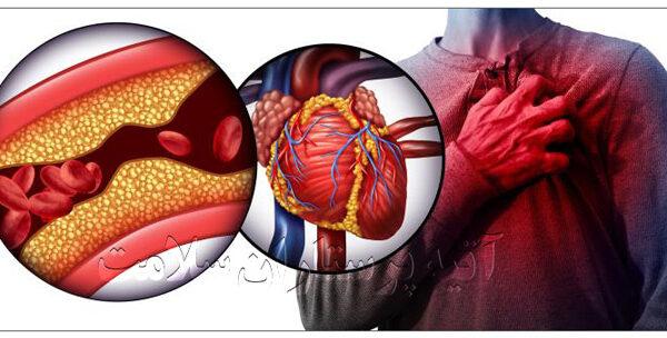 سکته قلبی در سالمندان آتیه سلامت