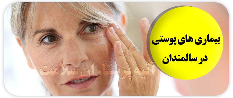 مشکلات پوستی در سالمندان
