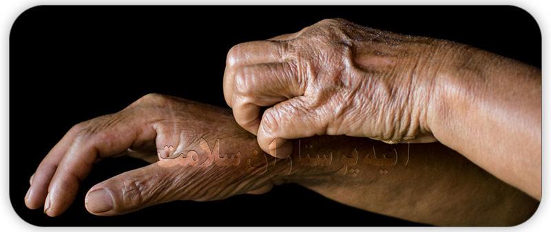 درمان خارش پوست سالمندان