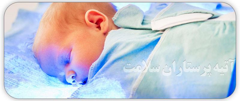 درمان زردی در نوزادان