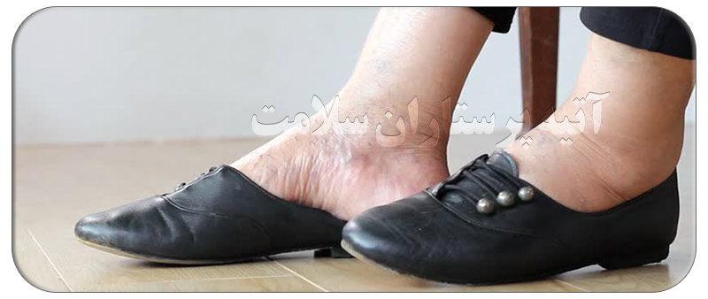ورم پا در سالمندان