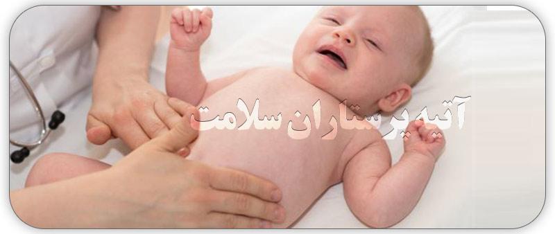 انسداد روده در نوزادان