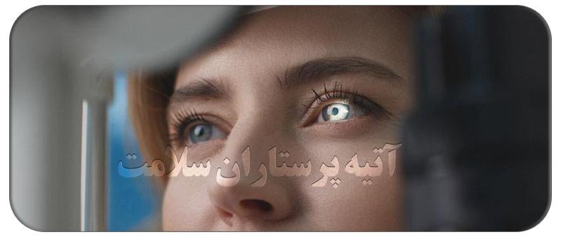 آستیگمات چشم