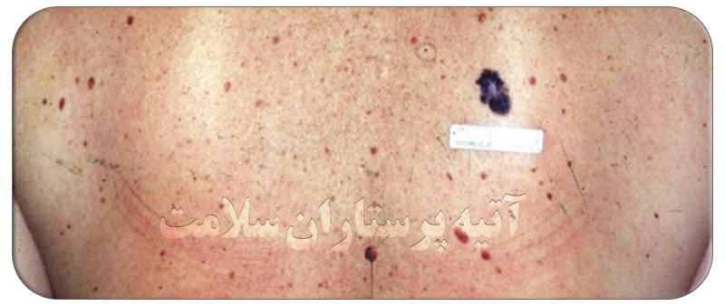 بیماری پوستی ملانوما
