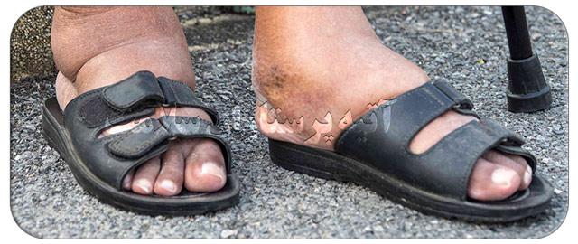 علت ورم پا در بیماران دیابتی و راه کارهای درمان