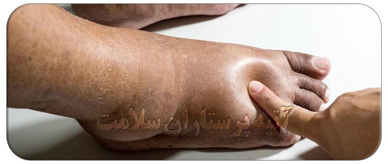 علت ورم پا در بیماران دیابتی