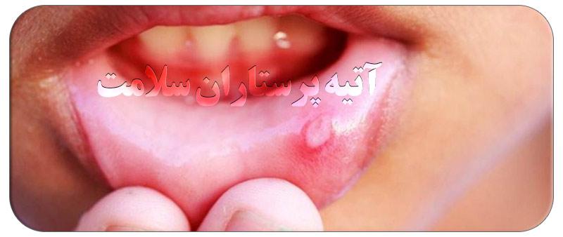 تبخال دهانی در کودکان