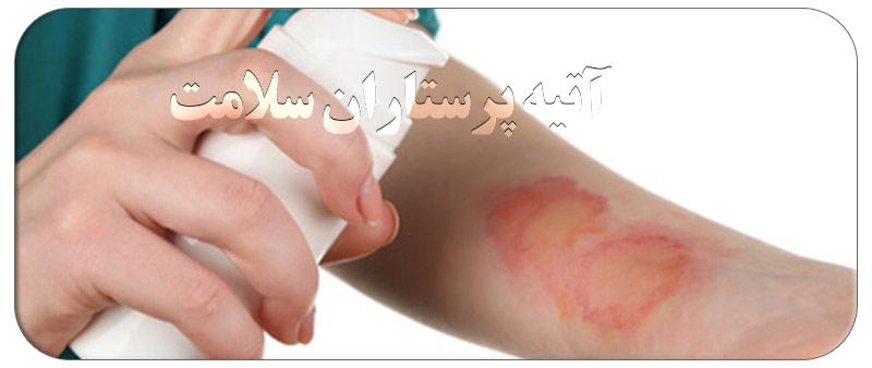درمان سوختگی در خانه با مراقبتهای ویژه