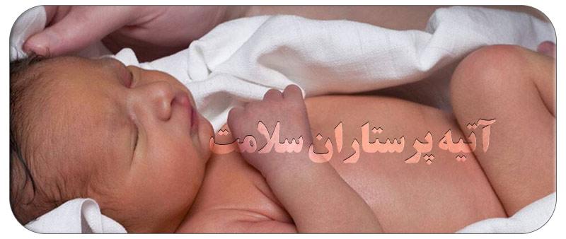 رفع تیرگی پوست نوزادان در منزل