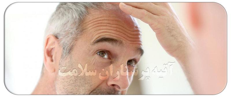 ریزش مو در سالمندان و راه های پیشگیری