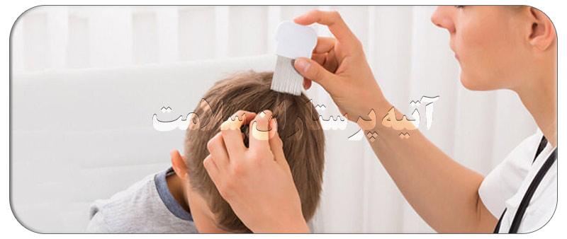 علت های ریزش موی کودکان