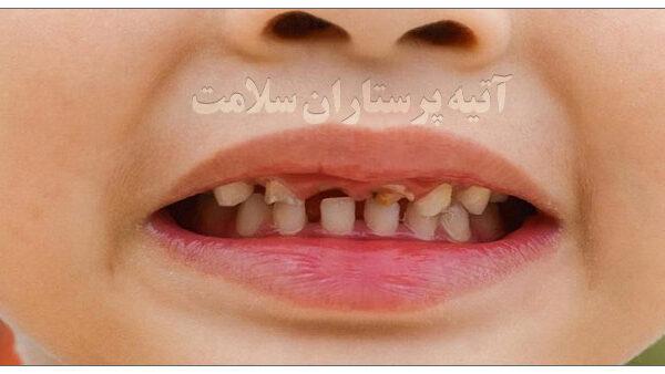 پوسیدگی دندان کودکان آتیه