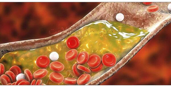 درمان خانگی چربی خون آتیه