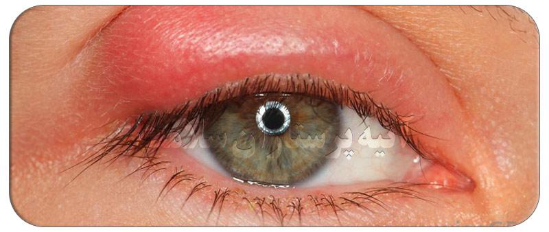 علت ورم پلک چشم و درمان های خانگی
