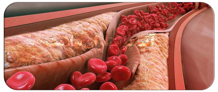 10 راه درمان خانگی چربی خون