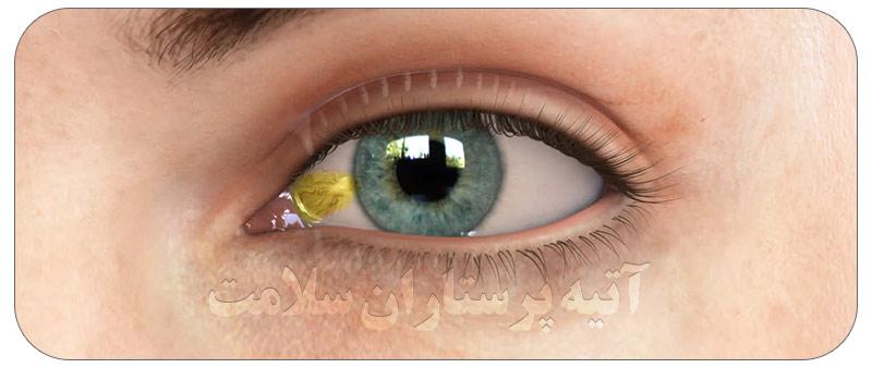 زائده زرد رنگ داخل چشم.1
