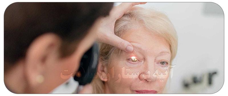 آب سیاه چشم چیست ؟ علت و درمان آن در منزل