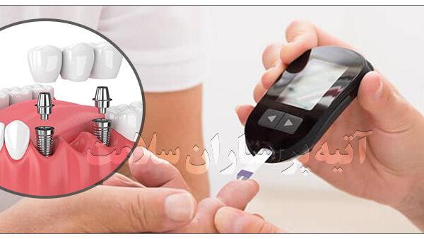 ایمپلنت دندان بیماران دیابتی