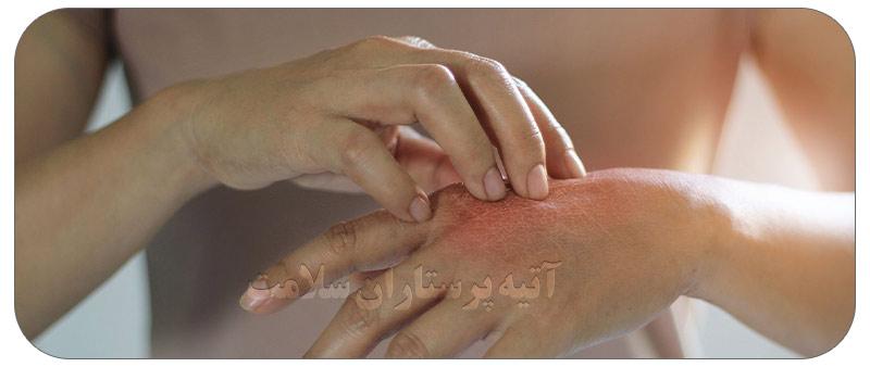 بهبودی قارچ پوستی