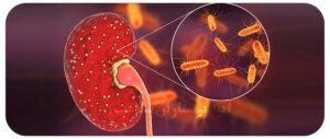 تشخیص عفونت کلیه