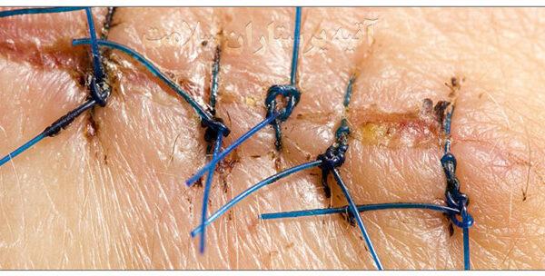 بهبود زخم جراحی