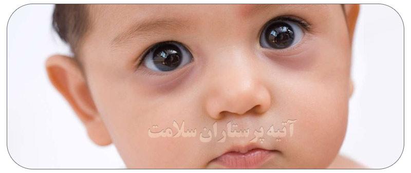 کبودی زیر چشمان کودکان درمان